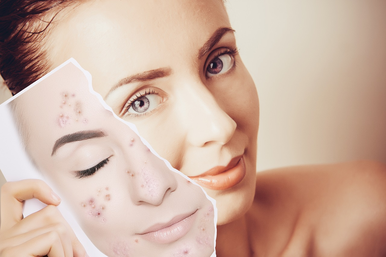 Acne: 5 Possible Causes | Balance Point Health Care